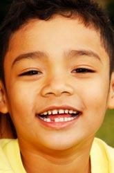 Social Talk Versus School Talk: Are Some Kids at a Disadvantage?